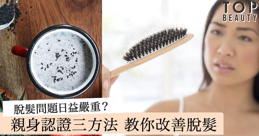 【編輯親身認證】五官精緻可惜脫髮多年?對症下藥便事半功倍!