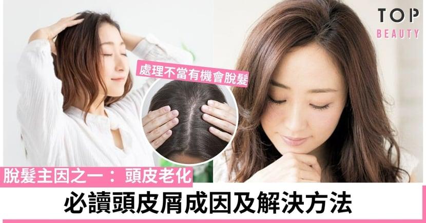 【頭皮護理】別讓膊頭滿是飄雪!4個強化頭皮方法,減少脫髮的危機