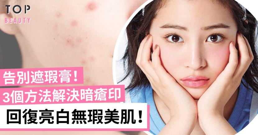 【去痘印】戴口罩焗出暗瘡!3個方法淡化暗瘡印、修復肌膚!