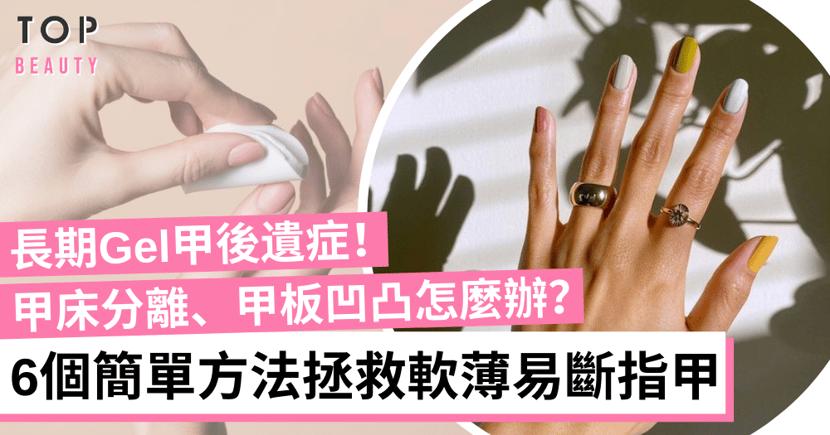 【手部護理】Gel甲控請進!指甲脆弱又易斷?維他命B7、指緣油改善軟薄指甲