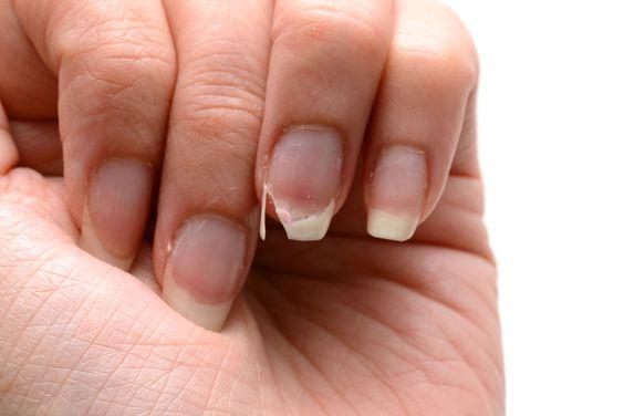 指甲兩側容易斷裂