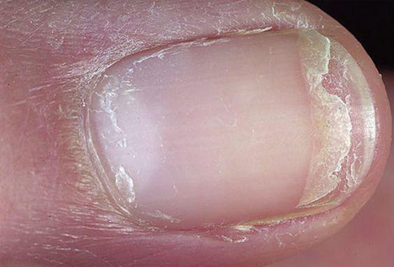指甲前端位置出現不規則層狀斷裂