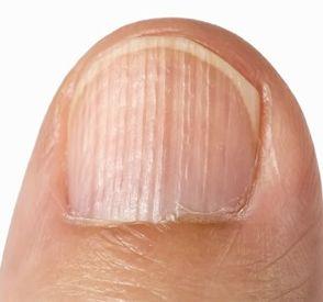 指甲出現條紋
