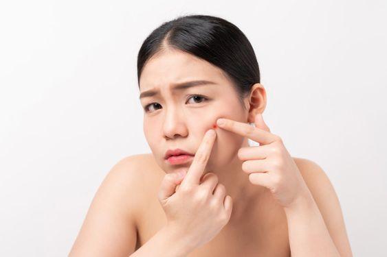 市面上祛暗瘡的產品多如繁星,尤其是暗瘡貼可說是近年來最熱銷的護膚產品之一