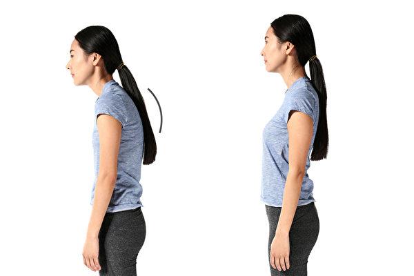 長期坐姿或站姿不對會導致駝背